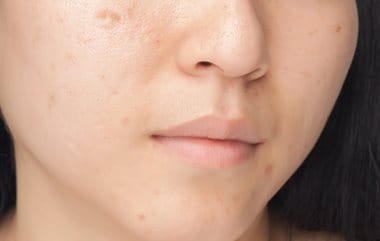 Pimple marks and scars causes by acne