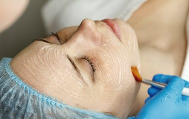 Chemical peels to get rid of acne scarring