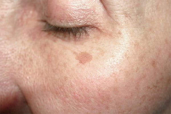torra hudfläckar i ansiktet