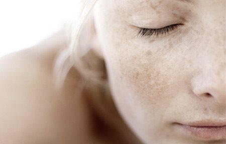 skadad hud i ansiktet