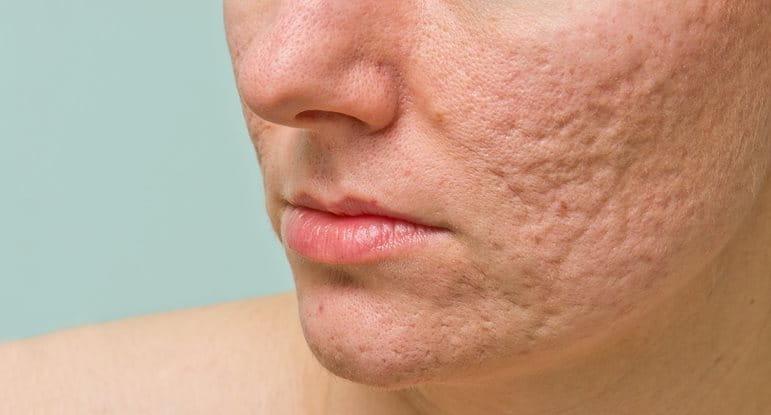 röda ärr av acne